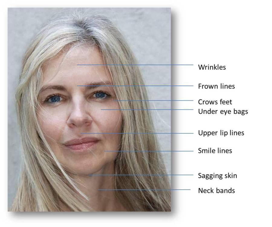 Absolutely Gorgeous Beautique, Beauty Salon, Gerda Oberholster, https://www.agbeautysalon.co.za, face, wrinkles, frown, lines, crows, feet, under eye bags, upper lip lines, smile lines, sagging, skin, neck bands, anti-aging, treatments