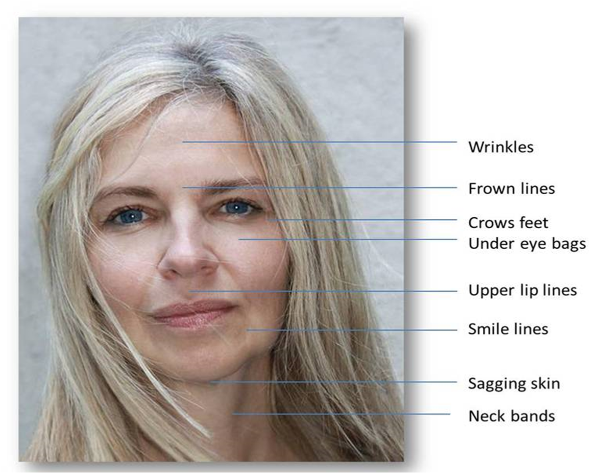 Picture of woman with areas highlighted for treatment